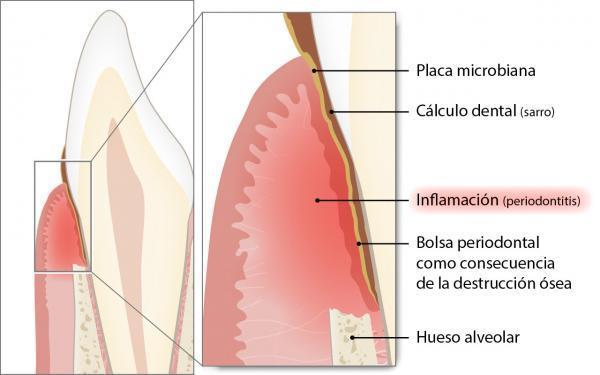 enfermedad de vasculitis ancla