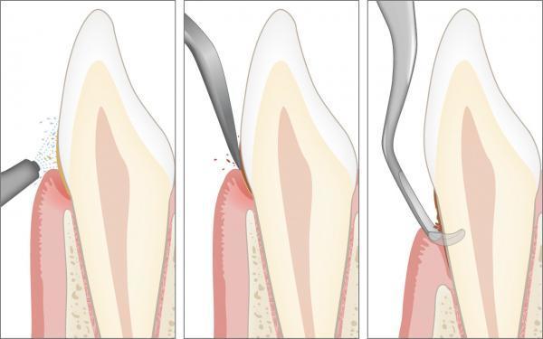 Vorbeugung der Parodontitis